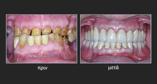 Αποτριβές δοντιών – Απώλεια της κάθετης διάστασης σύγκλεισης