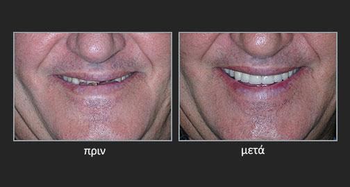 Εκτεταμένη απώλεια οδοντικών επιφανειών με πτώση της κάθετης διάστασης του προσώπου λόγω γαστροοισοφαγικής παλινδρομικής νόσου