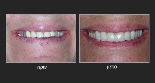 Ολική στοματική αποκατάσταση δυσχρωματικών δοντιών λόγω τετρακυκλίνης