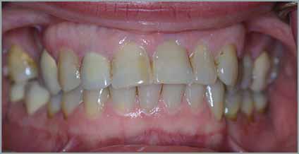 Οδοντιατρική μέριμνα δοντιών