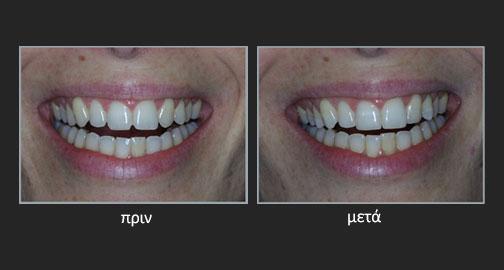 Νευρική Ανορεξία και Βουλιμία – Διάβρωση δοντιών