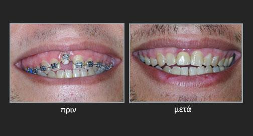 Ορθοδοντική ανατολή δοντιού στην αισθητική ζώνη με μετατόπιση των περιοδοντικών ιστών