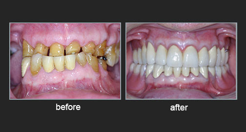 Worn teeth – Loss of occlusion on the vertical plane