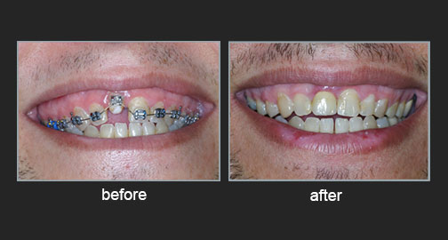 Orthodontic tooth eruption to the aesthetic zone with transference of periodontal tissues