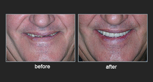 Extensive loss of tooth surfaces with a decrease in the vertical dimension of the face due to gastroesophageal reflux disease