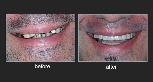 Restoration of a reversed smile line