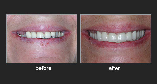 Complete oral restoration of tetracycline stained teeth