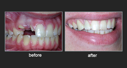 Accident – Forced orthodontic eruption of broken roots and restoration with ceramic crowns