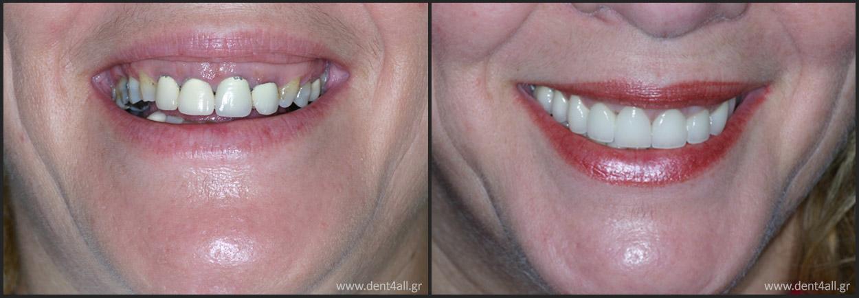 Dent4All Οδοντιατρική Μέριμνα Αγρίνιο