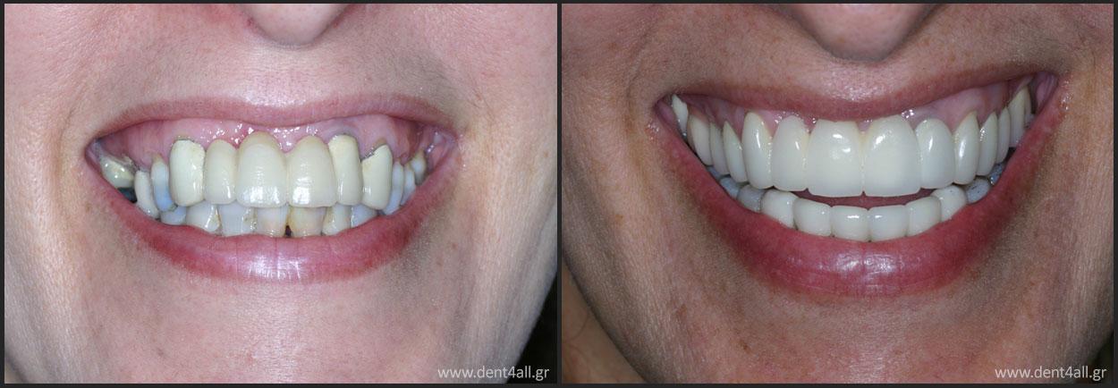 Dental repair
